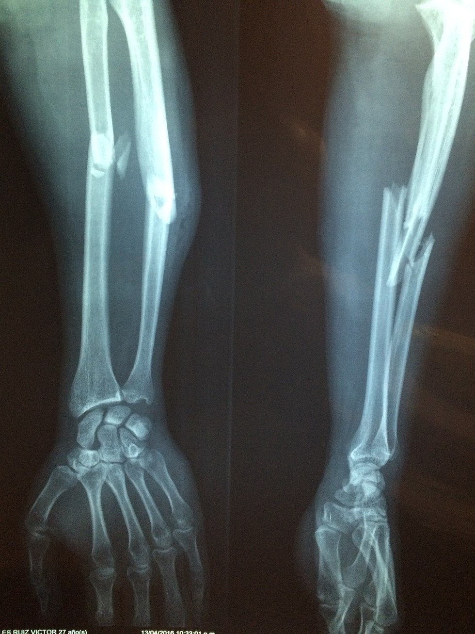 Broken Bone Or Bone Fracture Law Offices Of Bradley L Sorrentino