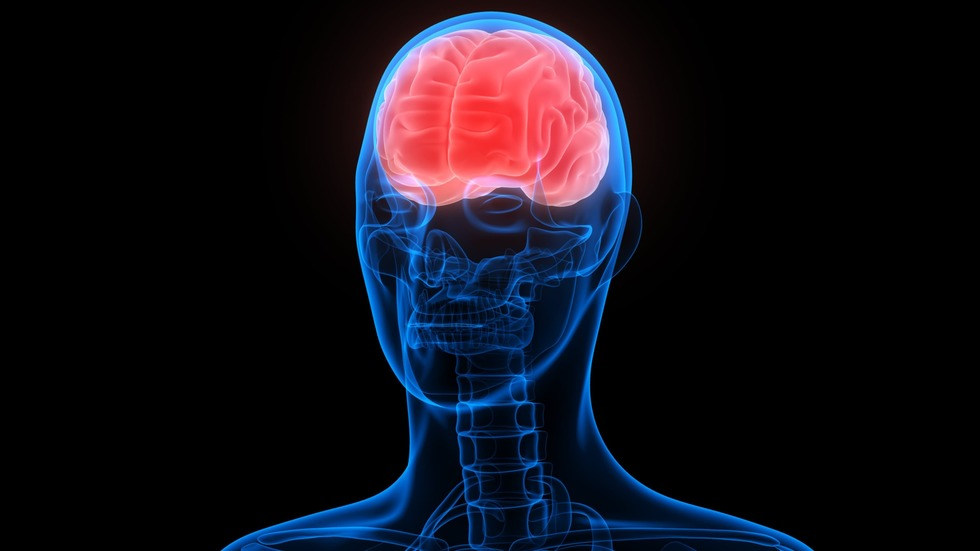 A traumatic brain injury (TBI) is an acute event that affects the brain, abruptly changing a person's life.