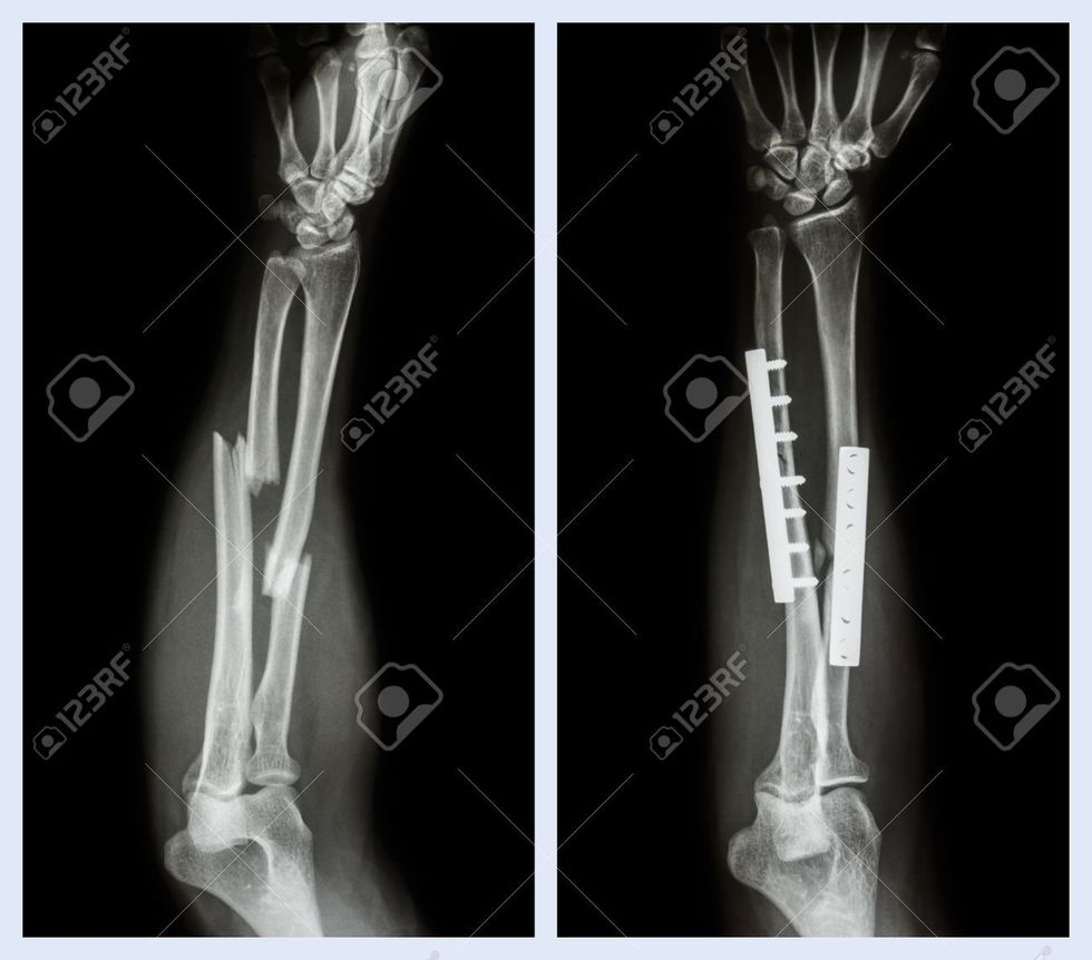 Fracture both bone of forearm it was operated and internal fixed with plate and screw left image bef 20%281%29