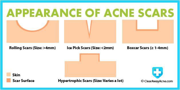 Acne 20scars