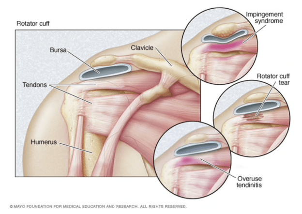 Rotator cuff tear injury after a car accident