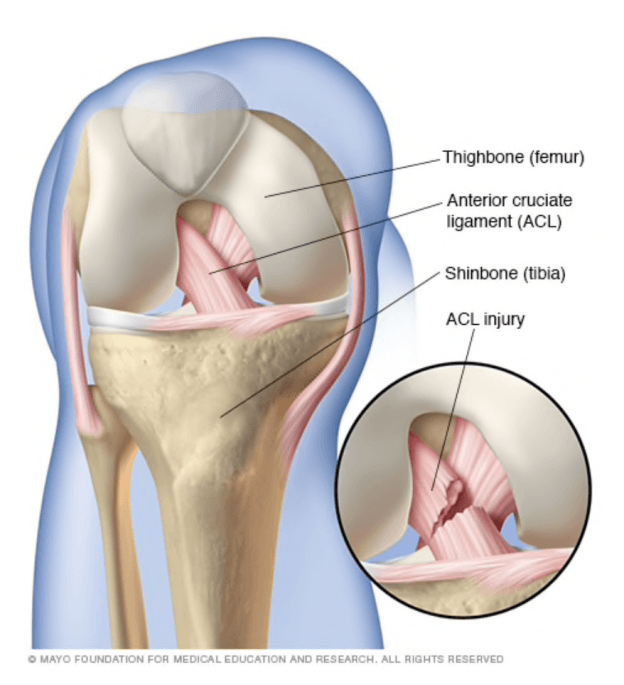 Anterior cruciate ligament ACL tear from a car accident