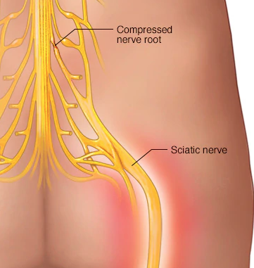 nerve pain caused by car accident sciatica