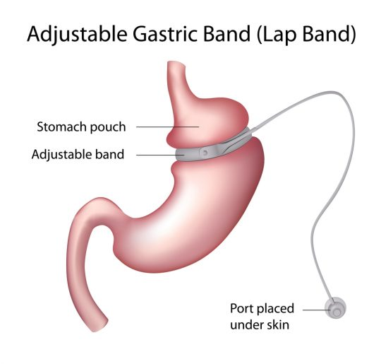 Adjustable Gastric Band (Lap Band)