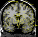 MRI Atlas: Brain (Coronal) - Scan 2