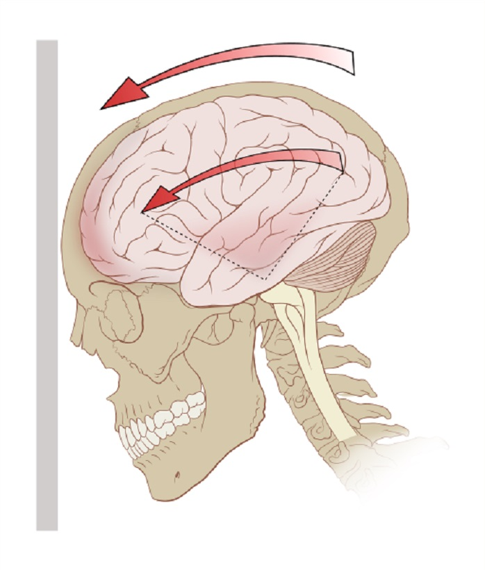 Image of head movement