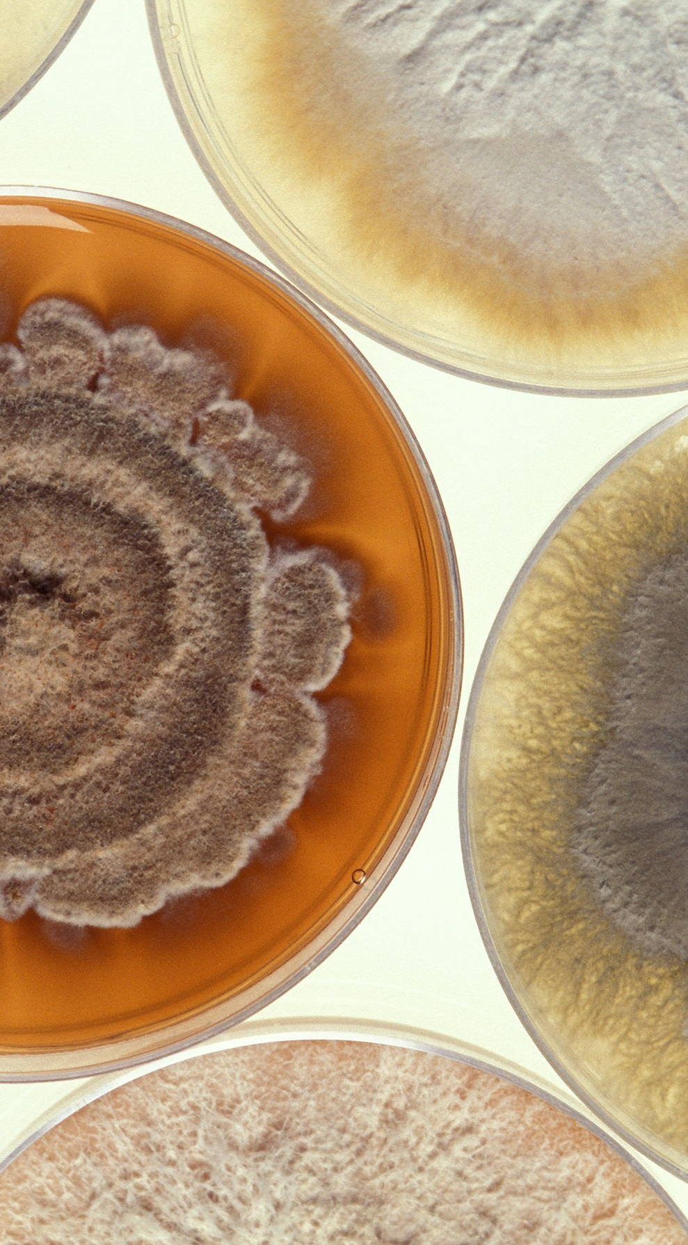 Cultures of a destructive mold called Phomopsis strains.