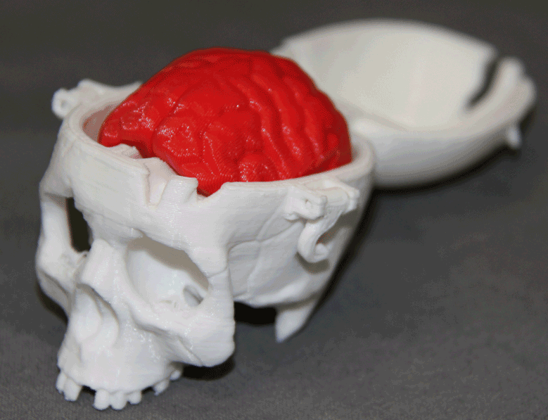 3D printed skull image
