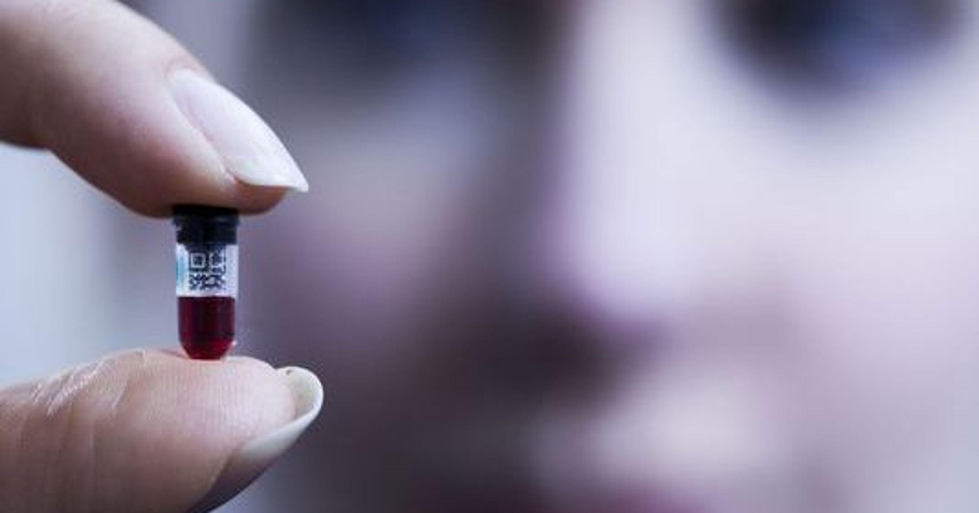 Theranos Edison Blood-Testing Machine | Life 360 Tips