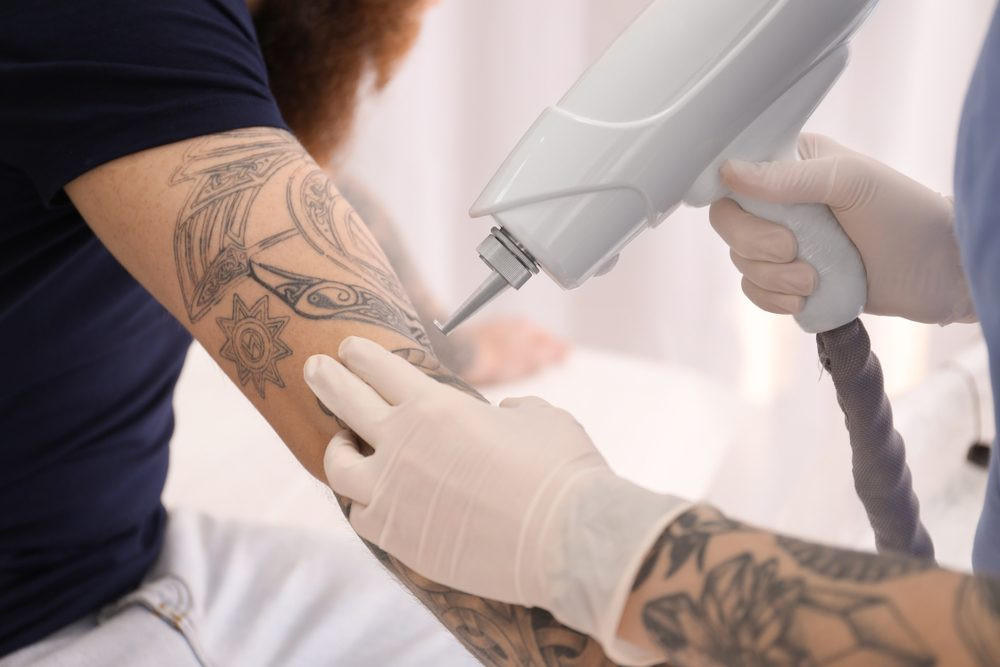 Methods of Tattoo Removal | Life360 Tips