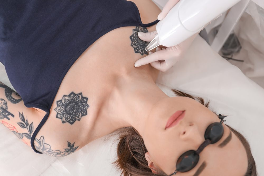 Professional Laser Treatment | Life 360 Tips