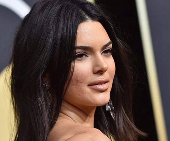 Kendall Jenner foi destaque por conta de sua acne no Globo de Ouro de 2018 e aproveitou o timing do Globo de Ouro de 2019 pra anunciar que é o novo rosto da Proactiv!