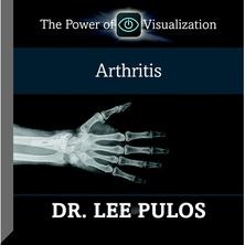 Arthritis cover image