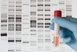 Guest Commentary: How genomic testing is redefining cancer research
