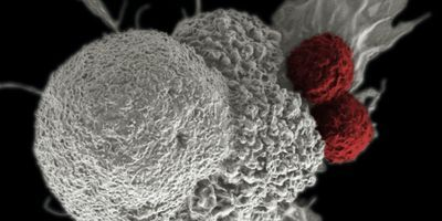 Targeting PVRIG in cancer immunotherapy