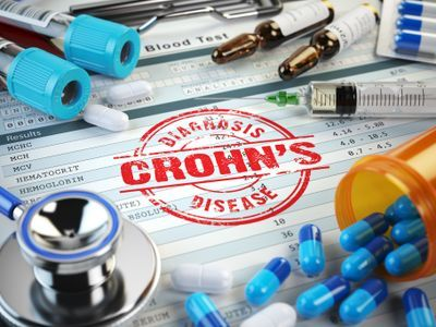 Tiziana collaborates with Parexel on Crohn's