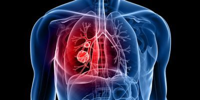 FDA approves new treatment for NSCLC