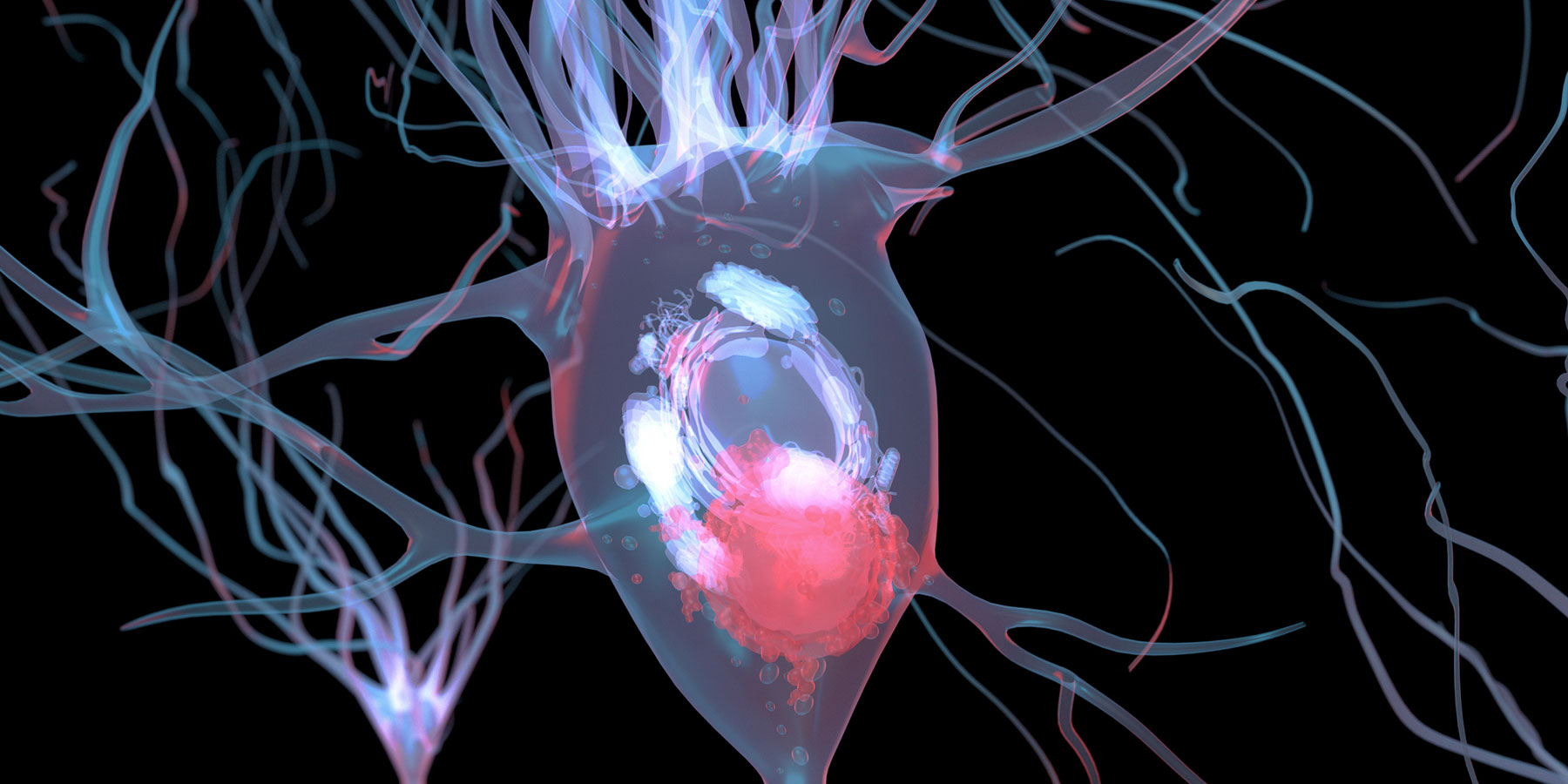 A first-in-class diagnostic for Parkinson's disease