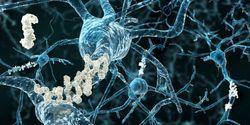 Antibody against Alzheimer's