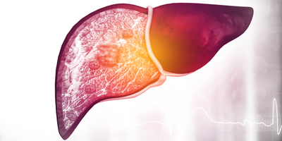 Grading non-alcoholic steatohepatitis