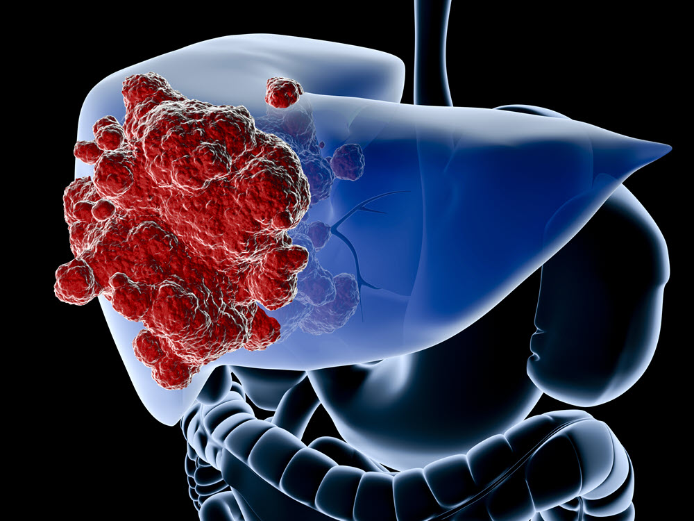 New options for hepatocellular carcinoma