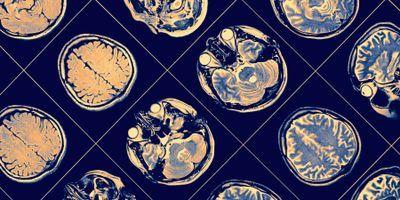 A shark antibody shuttles neuroprotection across the blood brain barrier