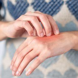 Depleting skin immune cells helps treat cutaneous lupus