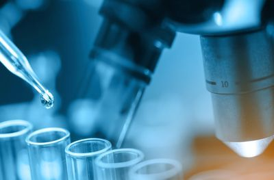 Accelerating Drug Discovery with High-Throughput and High-Content Screens
