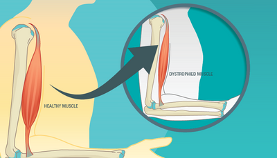 CRISPR editing for treating Duchenne muscular dystrophy
