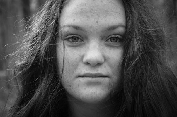 freckles. buy photo