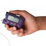 10 Best Practice Tips for Insulin Pump Care | The LOOP Blog