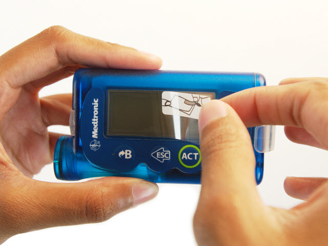 10 Tips For MiniMed Insulin Pump Care | The LOOP Blog