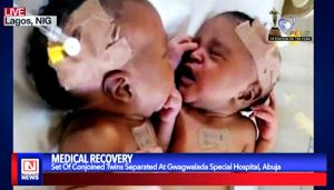 Conjoined Twins Separated in Nigerian Hospital