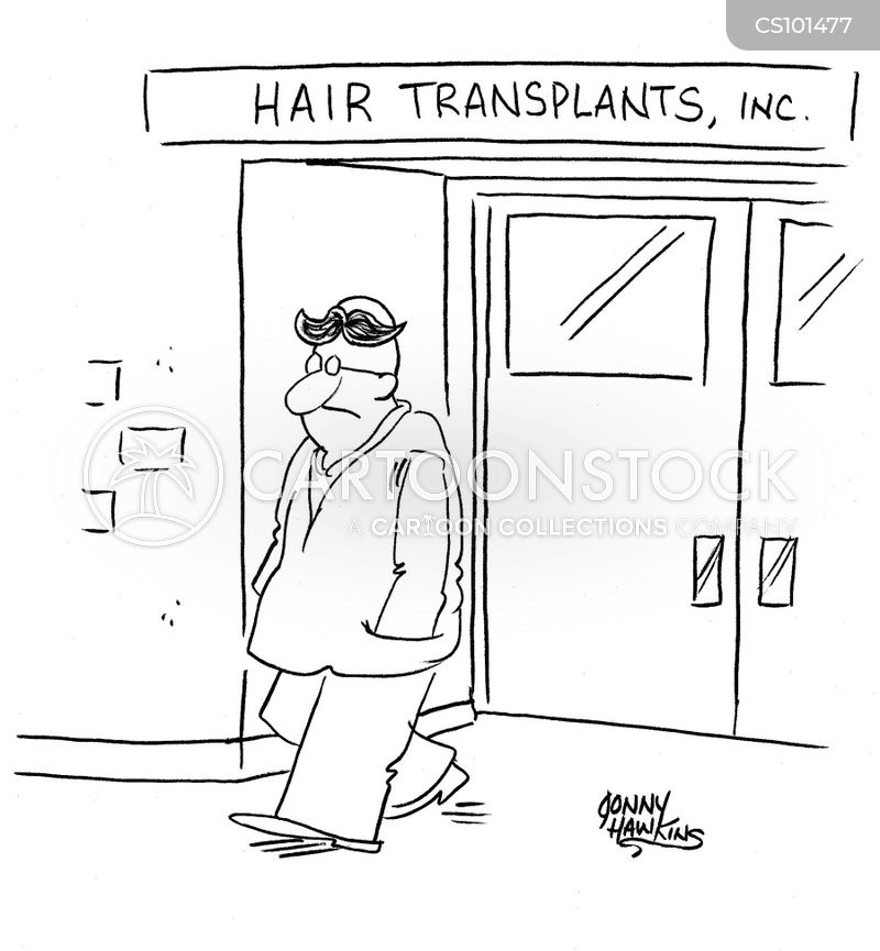 Alopecia cartoons, Alopecia cartoon, funny, Alopecia picture, Alopecia pictures, Alopecia image, Alopecia images, Alopecia illustration, Alopecia illustrations