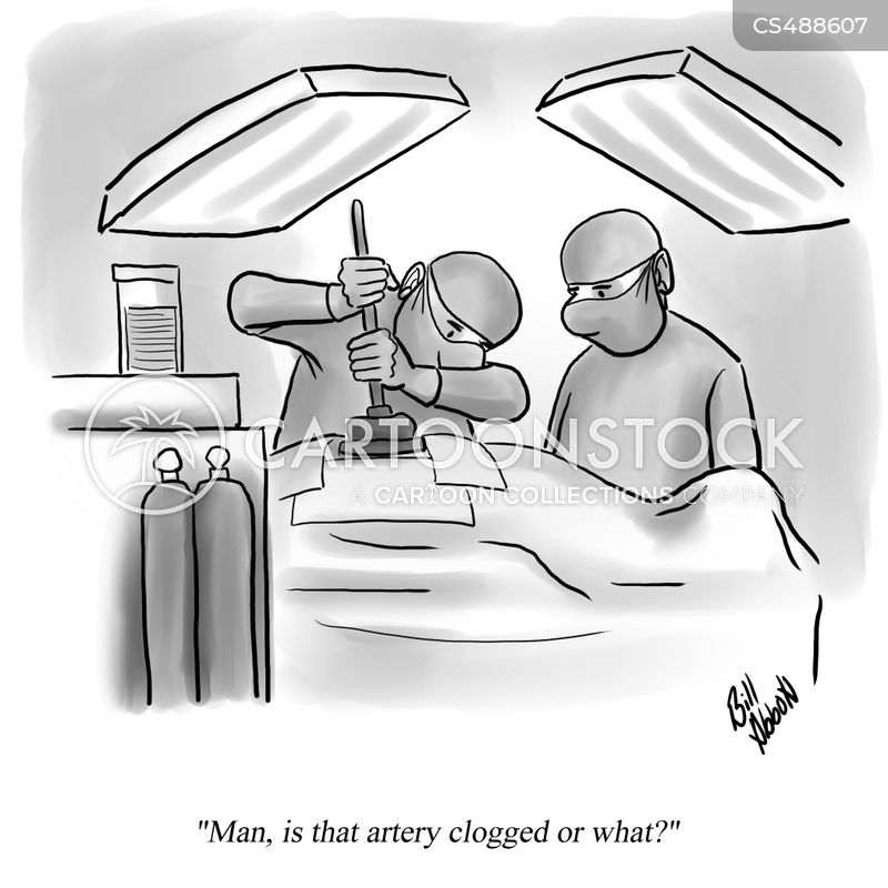 cardiac surgery cartoon