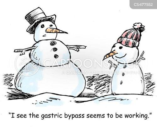 weight-loss surgery cartoon