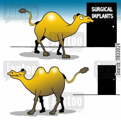 hump backs cartoon humor: Surgical implants.