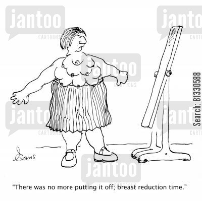 plastic surgeon cartoon humor: 'There was no more putting it off; breast reduction time.'