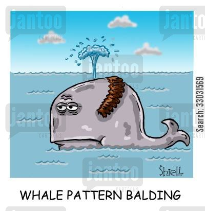 hair transplant cartoon humor: Whale Pattern Balding,