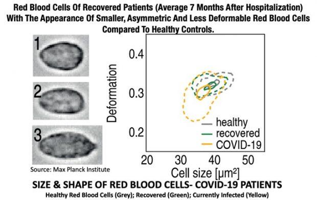 Rote Blutkörperchen von Langzeit-Covid-19-Patienten sind