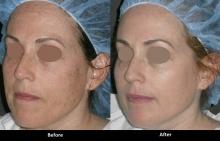 Package of Three (3) IPL Photofacial treatments (Laser Procedure)