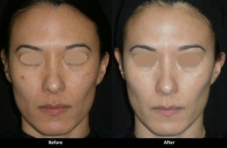Soft and Smooth Rejuvenation (Laser Procedure) - package of three treatments