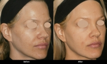 Package of Three (3) Soft and Smooth Rejuvenation treatments (Laser Procedure)