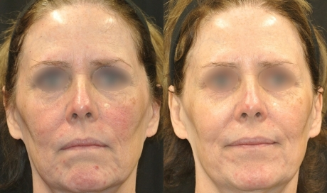 Tight and Bright Rejuvenation (Laser Procedure) - package of three treatments