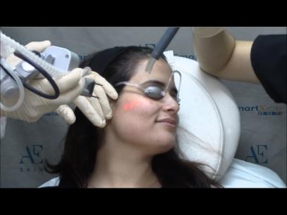 Trinity Rejuvenation (Laser Procedure) - package of three treatments