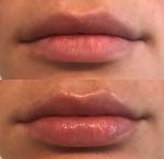 A E Skin Hydrating Lip Plumper