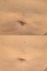 Laser Skin Tightening - Series of Six Treatments