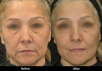 Ultra Microneedling - package of three treatments