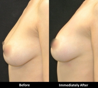 Laser Breast Enhancement - Series of Six Treatment
