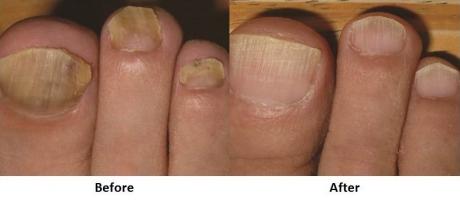 Laser Toenail Fungus Treatment - 3 treatments